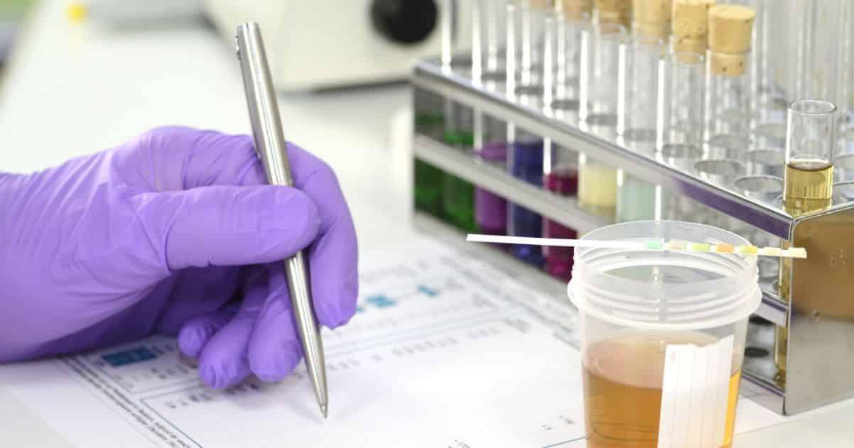 pre-employment drug test